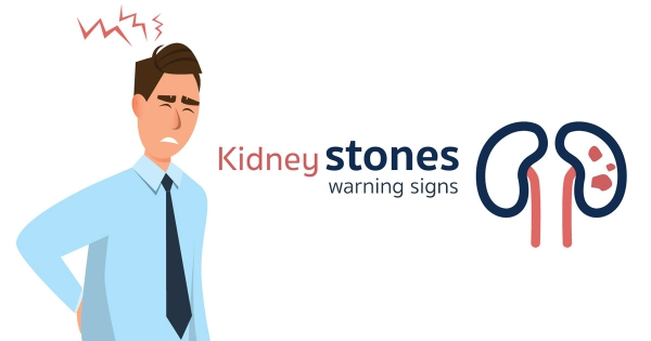 Kidney stones warning signs